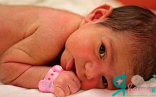У новорожденного на ушках волосы