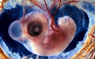 Степень Зрелости Плаценты В 32 Недели 1 2