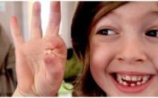 Удаление зуба молочного у ребенка