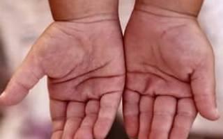 У Ребенка Трескается Кожа На Пальцах Рук