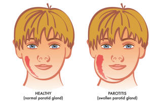 Свинка У Детей Симптомы И Лечение Профилактика Фото