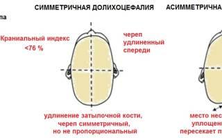 Вытянутая форма головы у ребенка