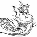 Лобное вставление головки плода
