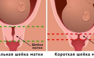 Короткая шейка матки кольцо при беременности